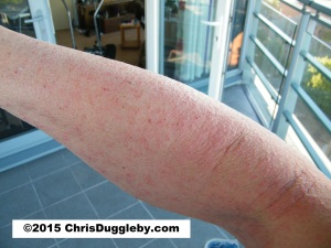 Week 3 of Chris Duggleby's Allergic Contact Dermatitis - What you see on the arm is typical of the whole body