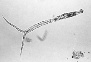 Schistosomal cercaria - Swimmers Itch Parasite (Photo CDC Minnesota Dept of Health)
