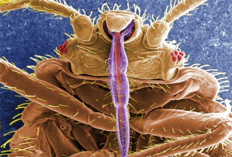 Cimex lectularius - The Bed Bug As seen Using A Scanning Electron Microscope