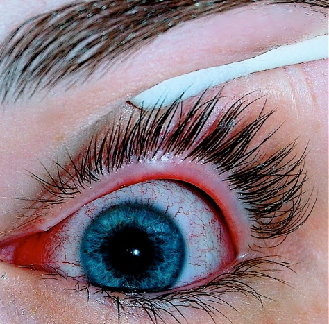 Eye with viral conjunctivitis (Pink Eye) - one of the symptoms of a Zika infection