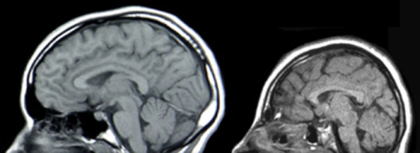 Normal head on left - one with Microcephaly on right