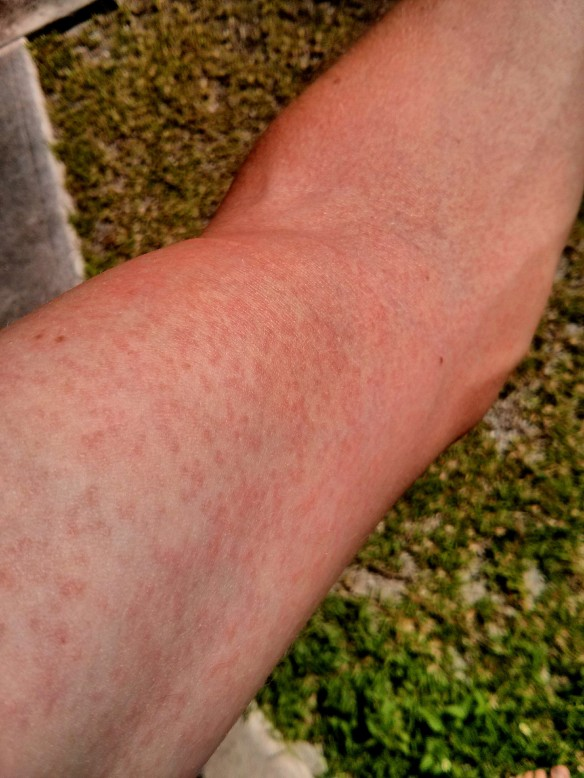 Zika Virus Infection - Rash on Arm