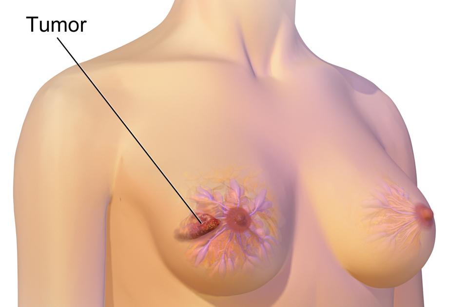Breast cancer risk women big sexy
