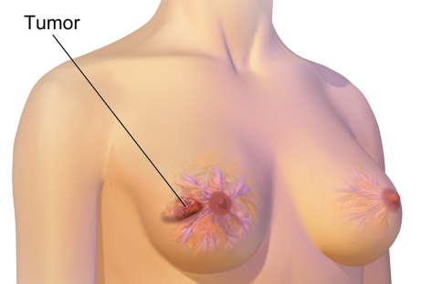 Breast Tumour From Chris Dugglebys article about Blind Carers Using Tactile Sensitivity to Detect Breast Cancer