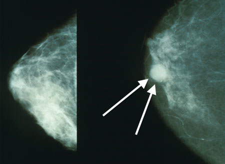 Often Tactile Examinations (Palpation) Provide The First Indication Of An Underlying Tumour In The Breast
