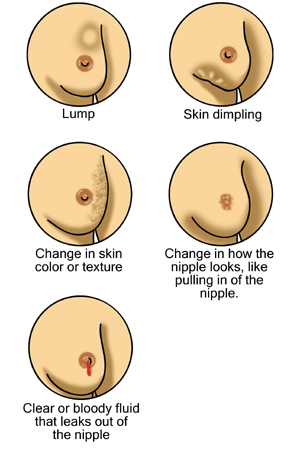 Some Symptoms Of Breast Cancer