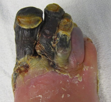 Example of Gangrene (please note this is a foot not a penis)