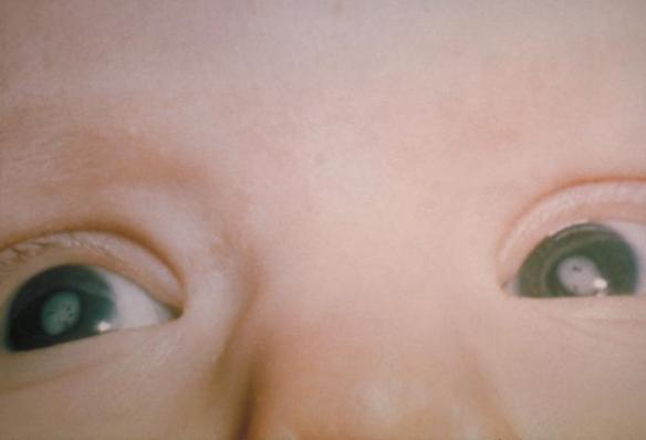 Baby with cataracts in both eyes