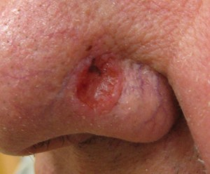Basal cell carcinoma 1 See Skin Cancer And Cataracts From Vehicle Side Windows at ChrisDugglebydotcom