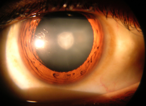 Picture of a cataract in a human eye