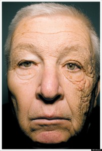 Damage to the Side of a truck driver's face from years of exposure to sunlight through his vehicle's side window