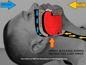 With Sleep Apnea the airways become blocked and prevent breathing