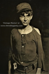 Glass Works Boy 16 (ish) Close Up Photo Demonstrating Damage to his 'Protective' Clothing 1908